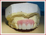 Removable Partial Dentures fram work