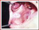 Pecancerous Condition of The Mouth Procedures